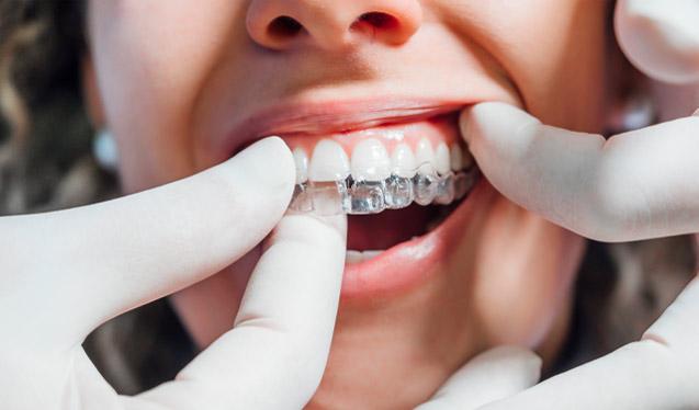 dentista colocando ortodoncia en gijón