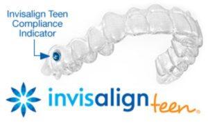 Ortodoncia invisible para niños Invisalign Teen